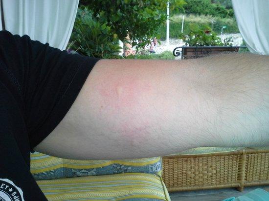 La Belle Vue : Killer Mosquitos