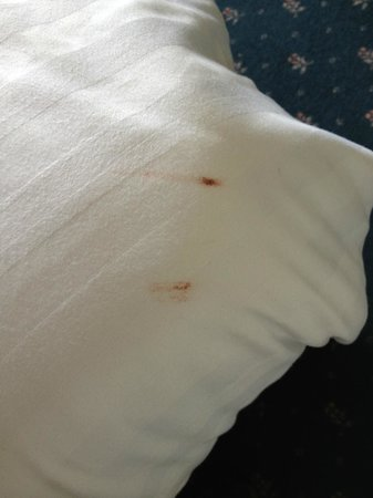 Mercure Leeds Parkway: Blood stains on bed linen