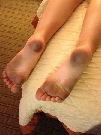 Days Inn Willoughby/Cleveland: My daughter's feet after walking in the room for 5 minutes