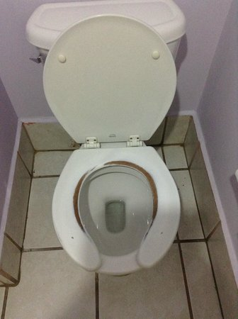 La Concha Beach Resort: Really?  You can't replace a toilet seat???