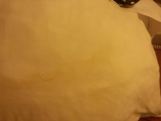 BEST WESTERN PLUS Medical Center South : Sweat Stains on Pillow