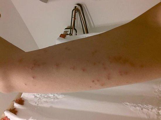 Settle Inn & Suites La Crosse: Bed bugs 1