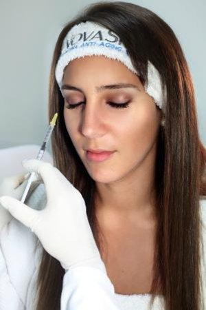 Botox & fillers - Picture of Nova Skin - San Isidro, Lima