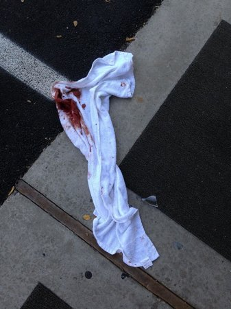 Motel 6 Salt Lake City Downtown: This was immediately outside my door on my final morning. That's a bloody towel.