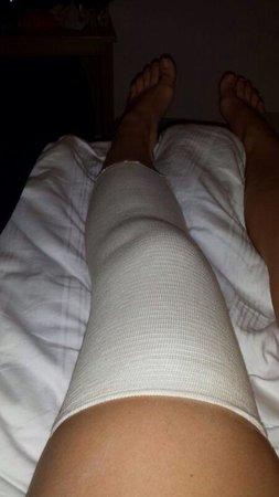 Premier Inn Edinburgh City Centre (Haymarket) Hotel: Torn knee ligaments after staying at the premier inn haymarket