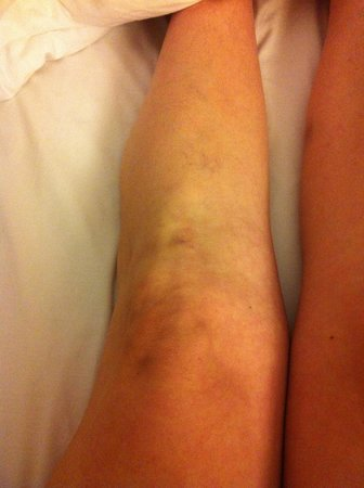 TownePlace Suites Baton Rouge Gonzales: My knee from the fall I am very sore and going to the doctor tommorrow
