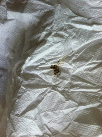 Caribe Hilton San Juan: Room 7406 Infested with Roaches