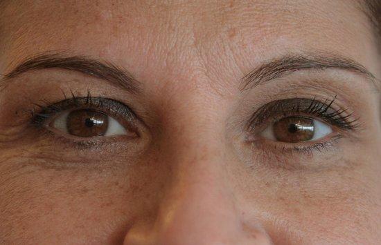 Hotel Fontane Bianche Beach Club: Gli occhi di una gentile signora
