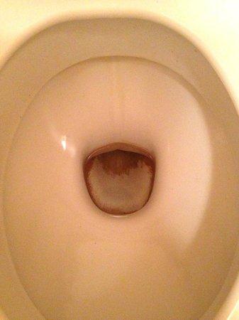 Park & Suites Confort Annemasse : les wc après que je me sois contrainte à les nettoyer, c'est ce que j'ai pu obtenir de mieux