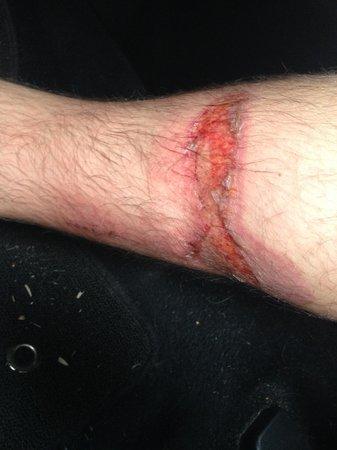 Bali Brio Fast Cruise: My burned leg, courtesy of Bali Brio's gross negligence and incompetence.