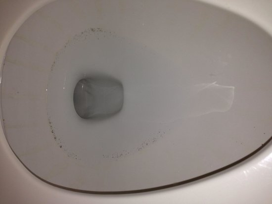 Mold in toilet - Picture of Marriott\'s Waiohai Beach Club, Poipu ...