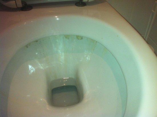 Conrad Hotel de Ville: Massive Hygienemängel!!!