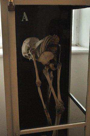 Federal Pathologic-Anatomical Museum: экспонат