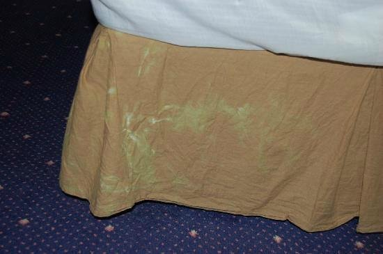 Royal Albion Hotel-Brighton: Stains on bedding.
