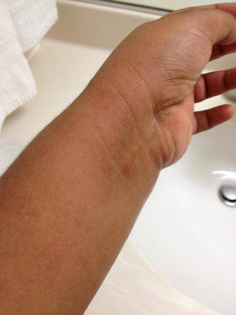 Ramada Barstow: The rash I picked up.
