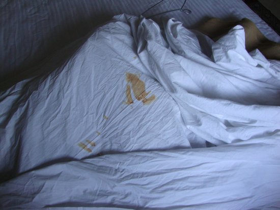 Holiday Resort  (The Reef ): Stained Bed Sheets