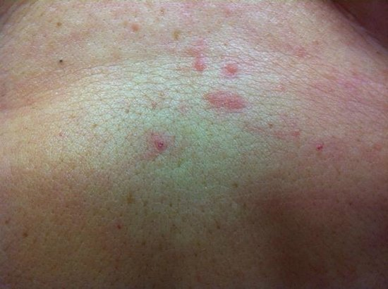 Deerfield Beach, Floride : One area of my back with bites.