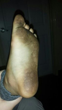 Daytona Beach Extended Stay Hotel: bottom of my daughter's foot from carpets