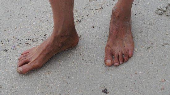 Nirwana Gardens - Nirwana Resort Hotel: black oil on my foot