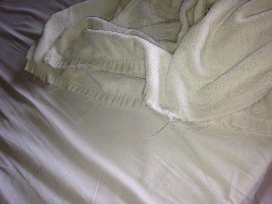Anahata Villas & Spa Resort : Ratty Towels
