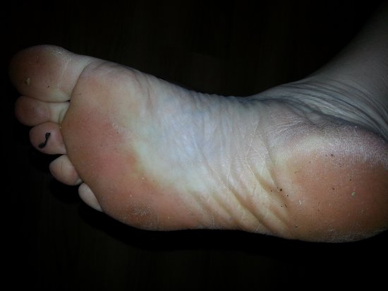 BEST WESTERN Port Aransas : My foot after walking on the floor for just a few minutes