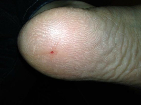 Doubletree by Hilton Detroit Downtown - Fort Shelby : My foot after the nail went through it.