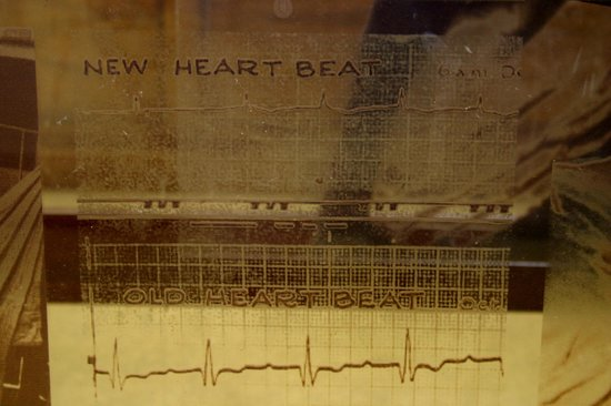 The Heart of Cape Town Museum: Heartbeat