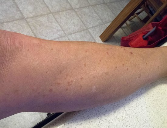 my leg with bedbug bites - Picture of Aneth Lodge, Cortez ...