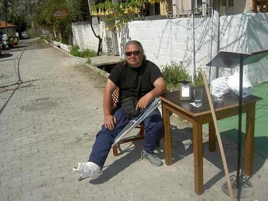 Temsi Restaurant: Izmets broken leg