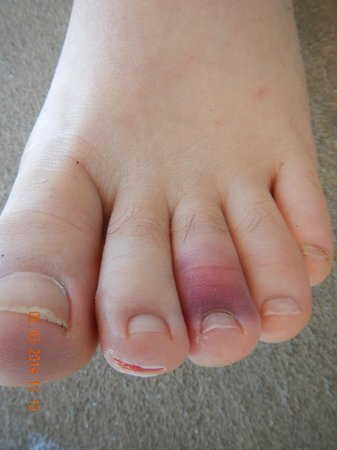 Honaunau Bay: Toe damage