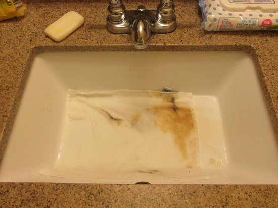 Rosen Inn International : this is some of what come off the sink
