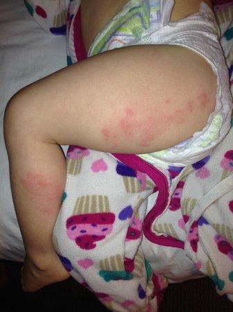 สกอตรัน, เพนซิลเวเนีย: Chemical rash