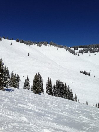 Vail Mountain Resort : Back Bowls