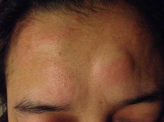 Patong Backpacker Hostel : Forehead bitten by the bed bugs