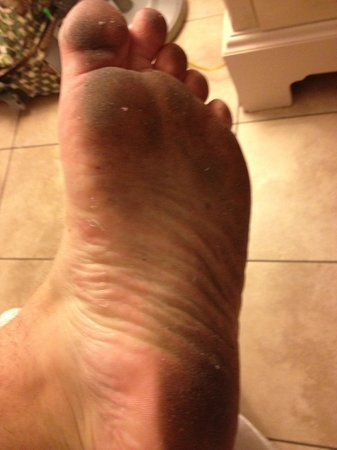 Fairfield Inn and Suites Key West: Foot after 20 mins in room.