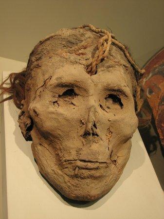 Didactic Museum Antonini (Museo Antonini): Mumificação com boca presa e furo na cabeça