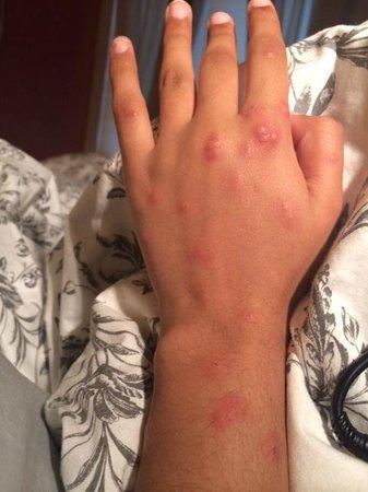 Hotel Baudin: some bed bug bites