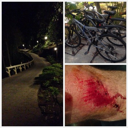 Panviman Resort - Koh Pha Ngan: bycicle accident