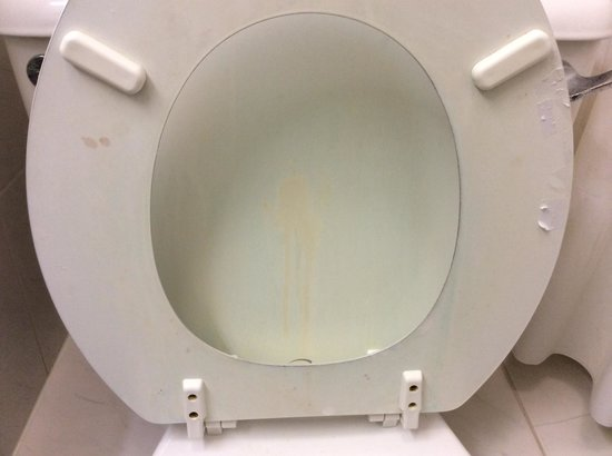 Lansdowne Hotel : None of those stains are mine, by the way. This is how the toilet was when I first entered the r