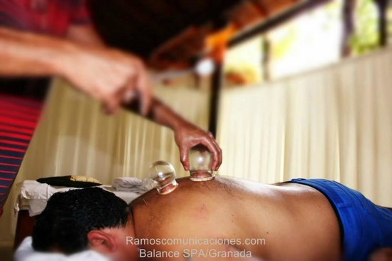 Balance Spa : Chinese Cupping Therapy