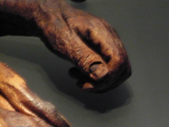 National Museum of Ireland - Archaeology : Mano di mummia di palude.