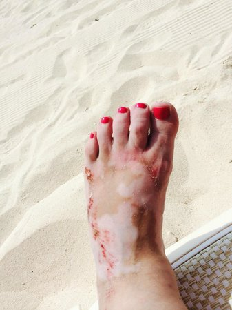 Grand Bahia Principe Tulum : After fall - foot became infected