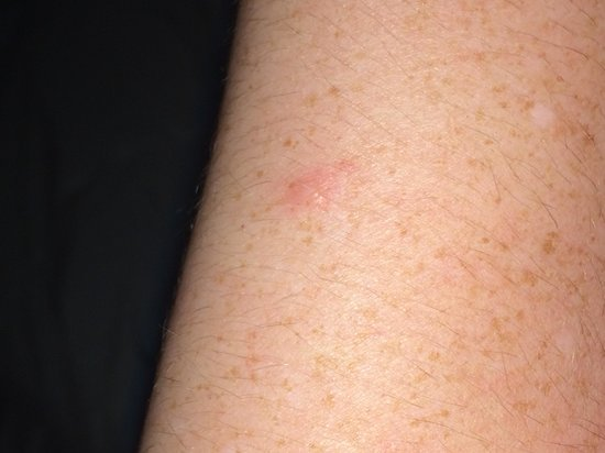 Magnolia Inn and Suites: Bed bug bite on my arm