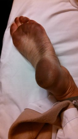 Ramada Torrance: Black feet