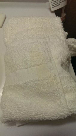 Best Western Rochester Marketplace Inn: Towel has stain