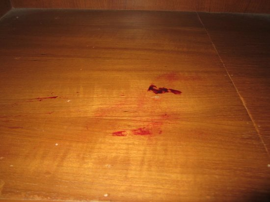 Top North Hotel: Close-up of Dried Blood