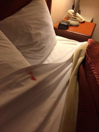 Howard Johnson Express Inn - Lenox : upon pulling the sheets back, we discovered this. we left immediately. seriously disgusting. DON