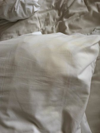 Le Reve Hotel & Spa: Stains galore on our bed sheets.