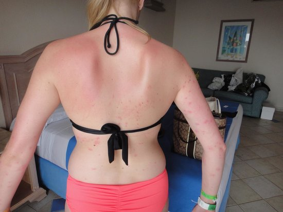 El Cozumeleno Beach Resort : Bed Bug bites covering back, arms, shoulders. Manager failed to accept responsibility and told m