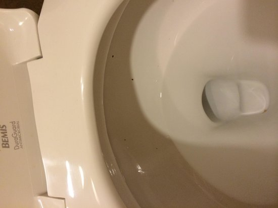 Denver Marriott City Center: Dirty toilet bowl